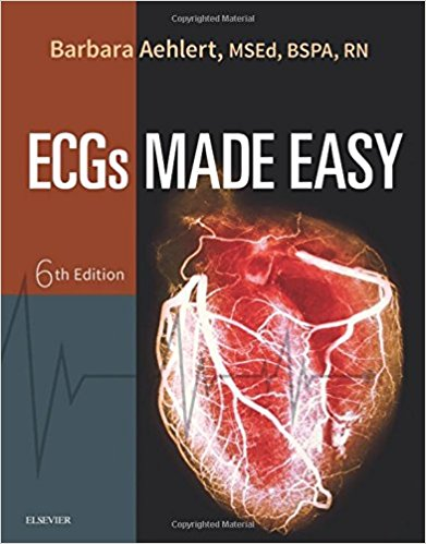Test Bank for ECGs Made Easy 6th Edition Aehlert